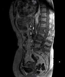 Colapso vertebral, fracturas, deslizamiento, falta de unión, osteoporosis, dolor, dolor de espalda, ciática, cruralgia, el dolor, las vértebras, el mal, los síntomas, las causas, el dolor de espalda, inflamación, mayor esfuerzo de flexión.