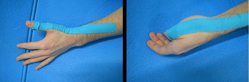 taping,de quervain, arruga, aplicación, extensión, flexión