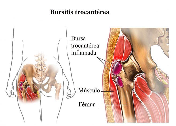 Resultado de imagen de bursitis de cadera