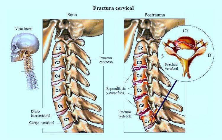 Cervical oido dolor contractura de por