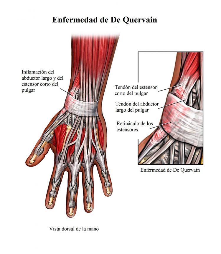 Tendinitis de la mano, muñeca, flexores de los dedos, sintomas y ...