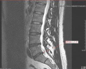 Rmn del disco intervertebral, hernia, comprime, raíz nerviosa, vértebras, médula espinal, nervio, núcleo pulposo, anulus fibroso, fissurato, resquebrajado, deshidratación, sagrada, lumbar, inflamación