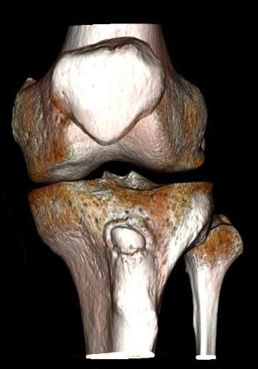 irregularidades-tuberosidad tibial-front-presencia - núcleos - fragmento corticalizzato-compatible de Osgood-Schlatter