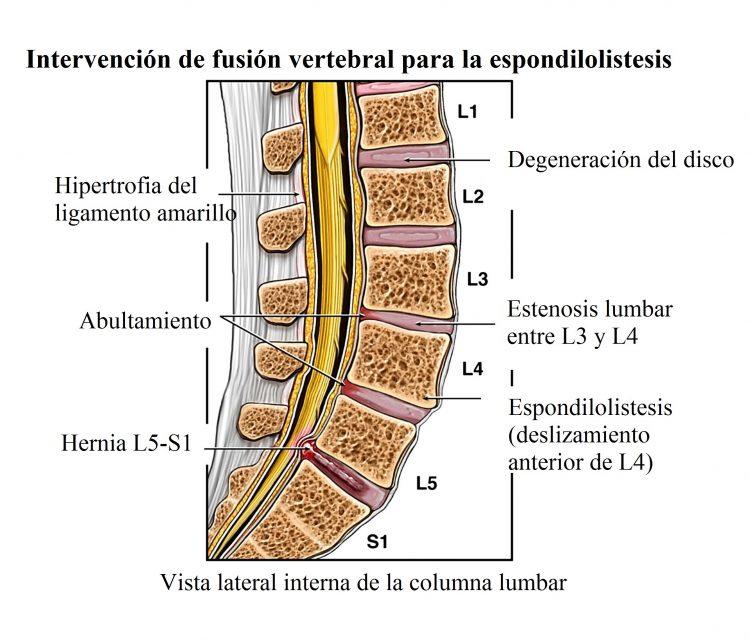 fusion vertebral, espondilolistesis