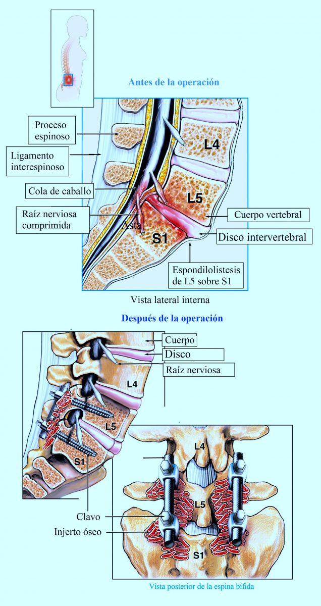 espondilolistesis, espondilolisis