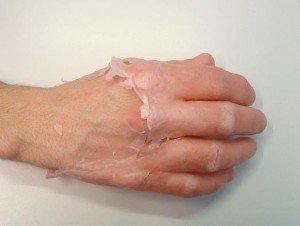Dorso de la mano con el guante de parafina