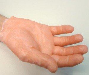 Palmo della mano con il guanto di paraffina