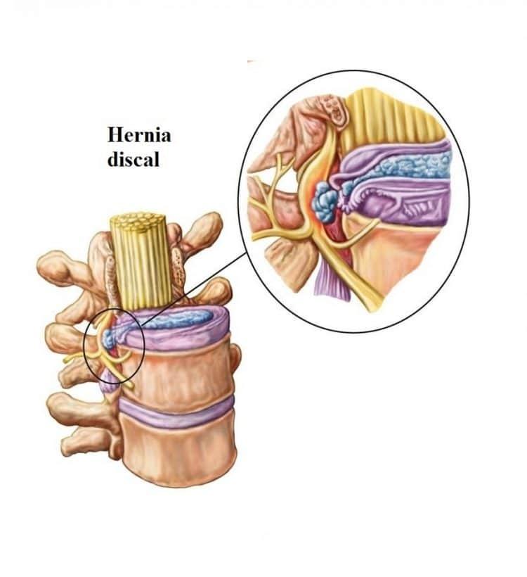 hernia discal foraminal