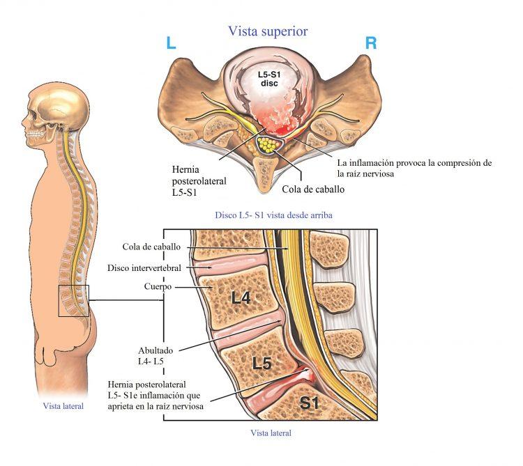 El dolor el lado izquierdo de los riñones