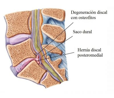 Hernia discal, osteofitos