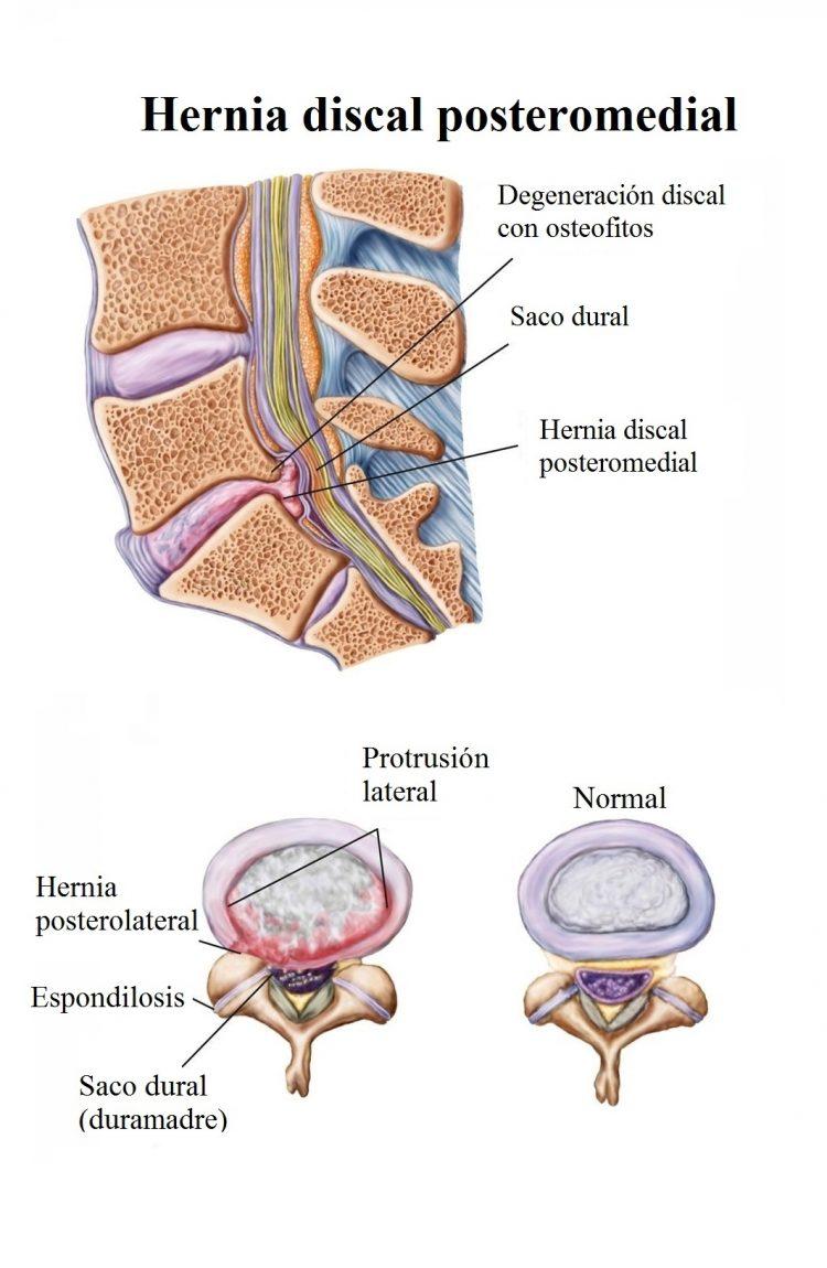 Hernia discal lumbar, L4, L5-S1, sintomas, signos, ciatica, tratamiento