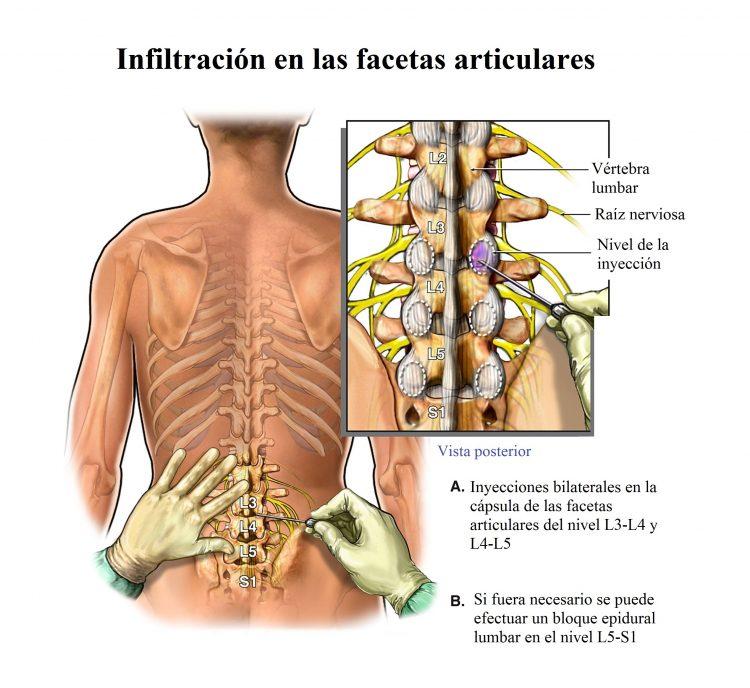 Artrosis vertebral lumbar y cervical, síntomas y fisioterapia