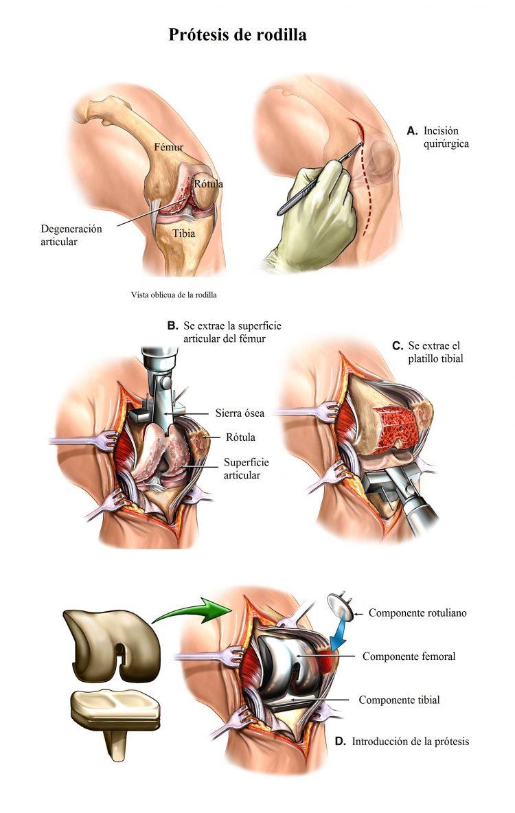 Operación quirúrgica de prótesis de rodilla