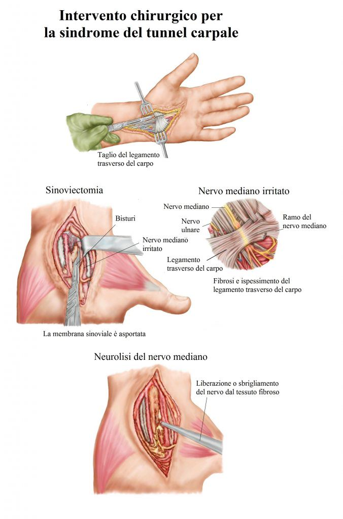intervención-quirúrgica-para-el-túnel-carpiano