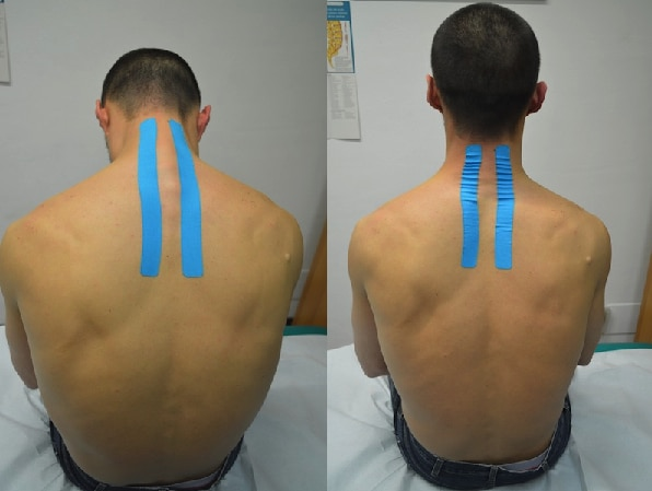 Kinesiotaping, cuello, cervical