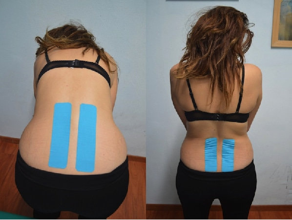 Kinesiotaping, cinta adhesiva, lumbar, espalda