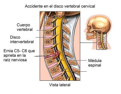 latigazo cervical, columna vertebral
