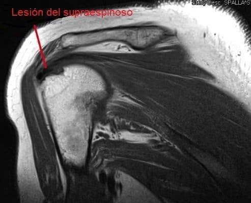 Resonancia magnética, hombro, húmero, lesión, supraespinoso