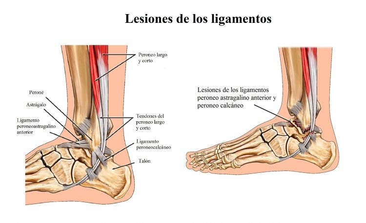 lesion de los ligamentos