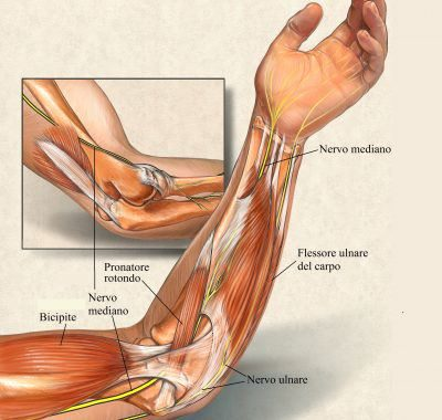 Síndrome del túnel carpiano, síntomas, dolor, muñeca, electromiografía