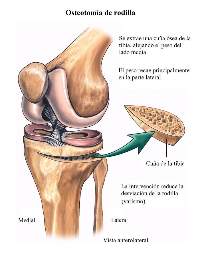 Osteotomía de la rodilla, cirugía, artrosis, valguismo