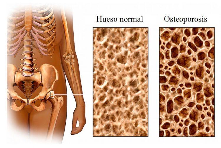 hueso, normal, densidad ósea, osteoporosis