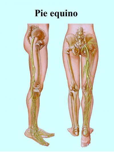 lumbociatica y ciatica