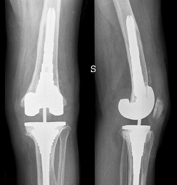 prótesis, artrosis, total, rodilla, daño, articulación, inflamación, dolor, fisioterapia, rehabilitación