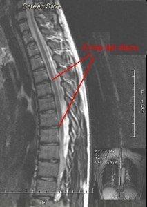 Resonancia magnética, la médula, nervio, músculo, la fisioterapia y la rehabilitación, la espina dorsal, neuropatía, enfermedad de disco, hernia de disco, protuberancia, abultamiento, columna, disco, raíz nerviosa, anillo fibroso, el núcleo pulposo, D1, D2, D3, D4, D5, D6 , D7, D8