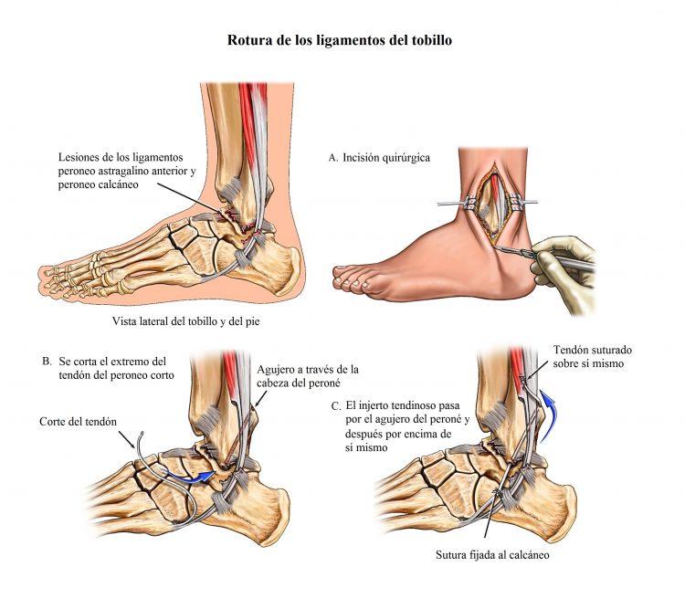 rotura de los ligamentos del tobillo