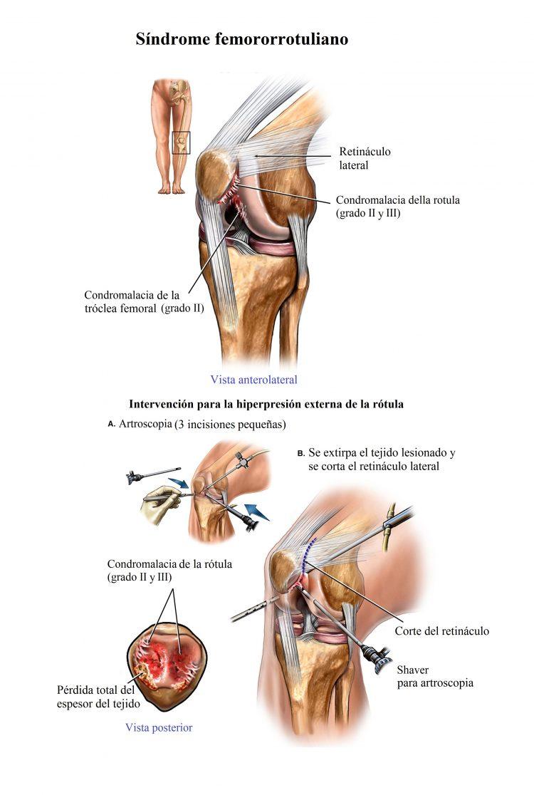 sindrome femororrotuliano