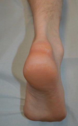 índrome de Haglund, la prominencia, tendón calcáneo, Aquiles, bursitis, dolor, inflammation,