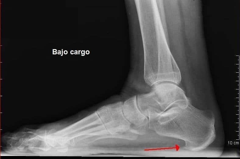 Radiografía de un pie con osteoporosis y visible espuela calcaneare sobre el talón.
