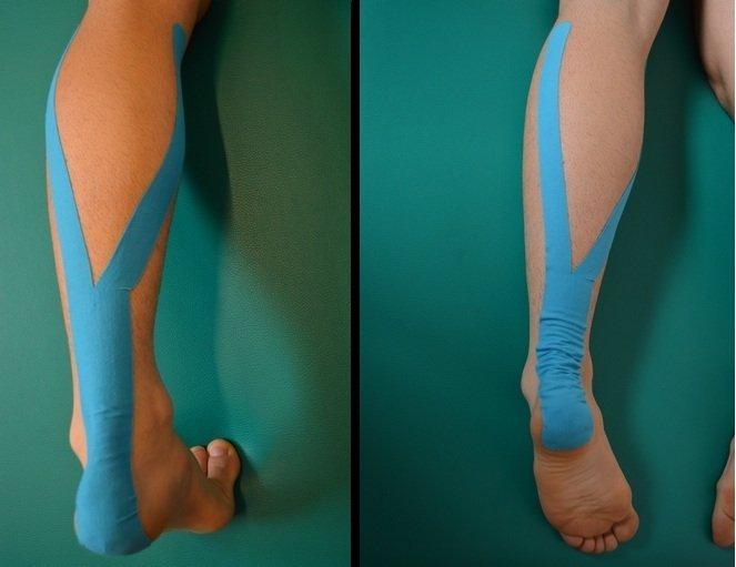 rotura, lesión, estiramiento, pantorrilla, tape, kinesio, tratamiento