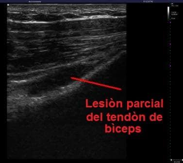 ecografía , lesión, tendón, bíceps