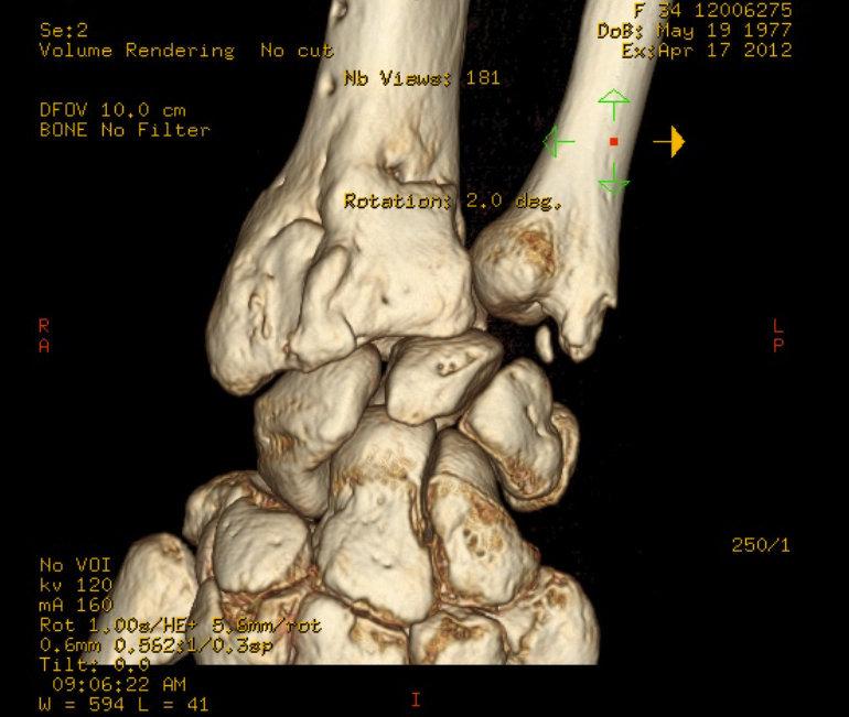 TAC trimidensional de la muñeca fracturada (vista dorsal)