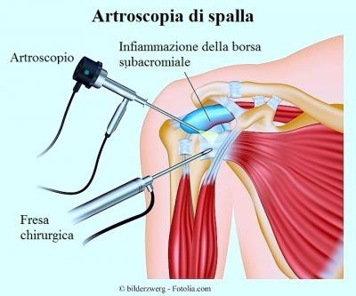 capsulitis-adhesiva-artroscopia