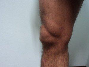 Bursitis de la rodilla, supra-patelar, inflamación, dolor