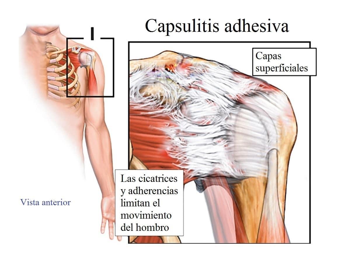 Capsulitis adhesiva o hombro congelado, causas y síntomas