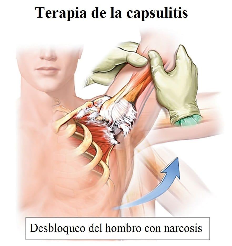 capsulitis-adhesiva-desbloqueo-narcosis
