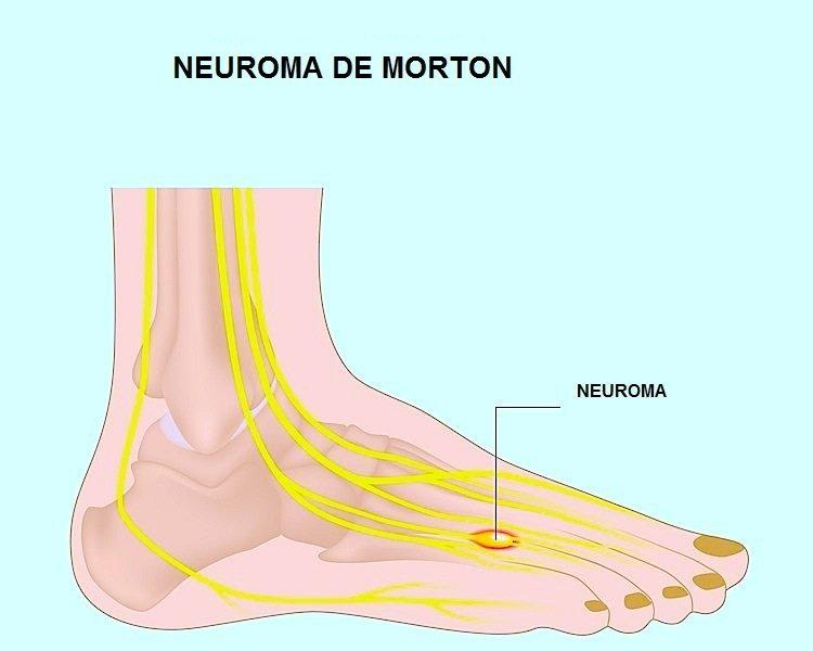 neuroma, de morton, cirugía, cirugía, dolor, hormigueo, nervio, constante, totalmente recomendable.