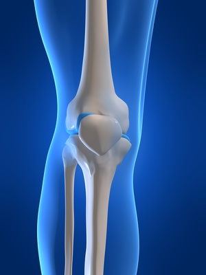 Articulación de la rodilla afectada, gota