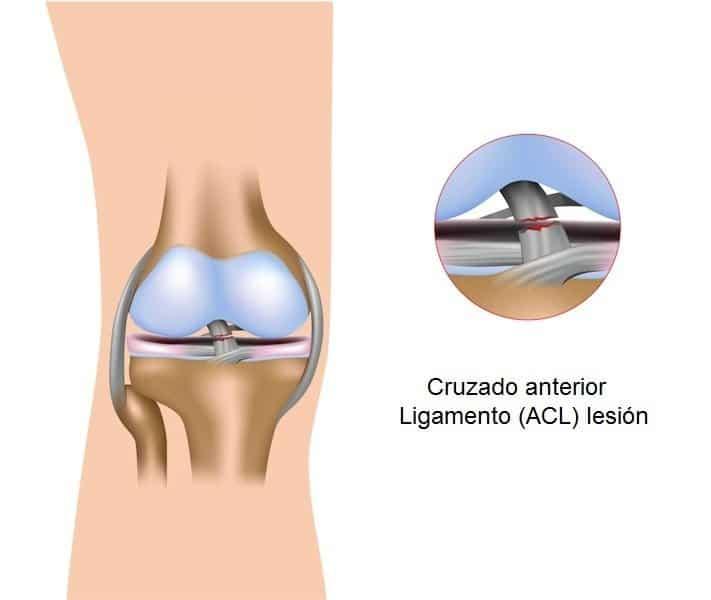 anatomía rodilla, cruzados, colaterales, meniscos, huesos y tendones, rotuliano