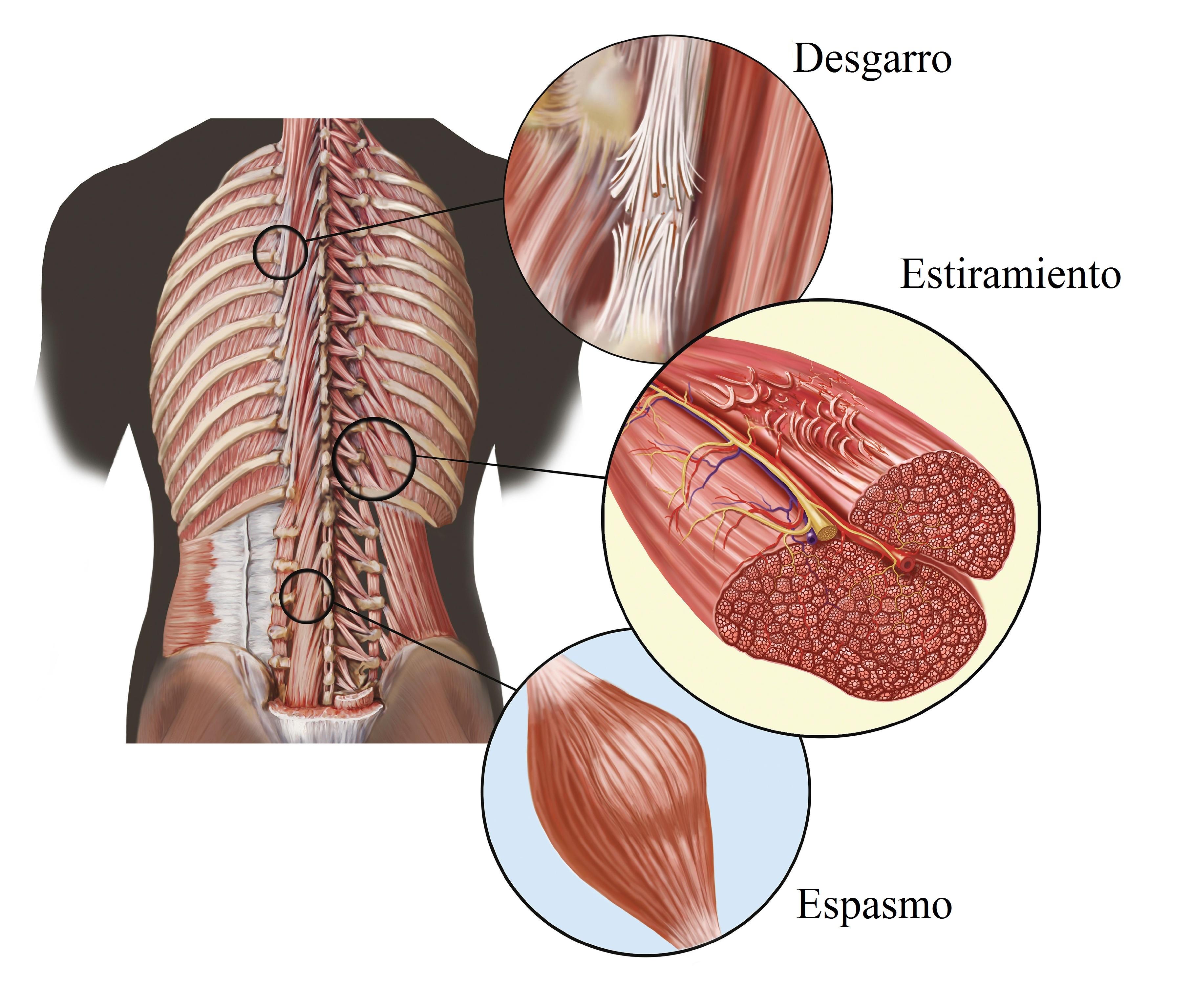 Para la muscular remedios contractura