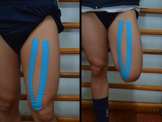 contractura, dolor, muscular, taping, trato, relajamiento