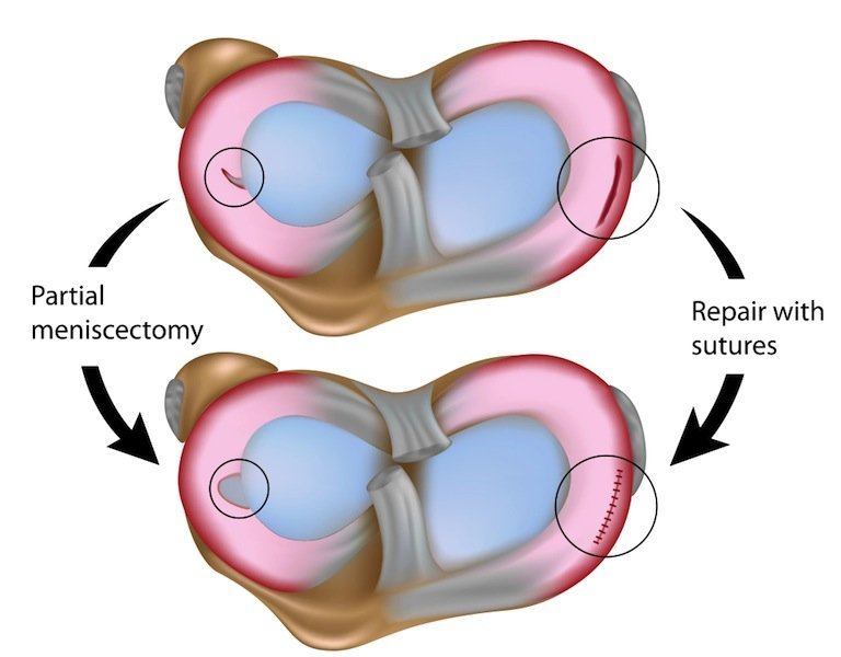 intervención, menisco, quirúrgico, operación, sutura, meniscectomia, selectivo, totale,meniscus, dolor