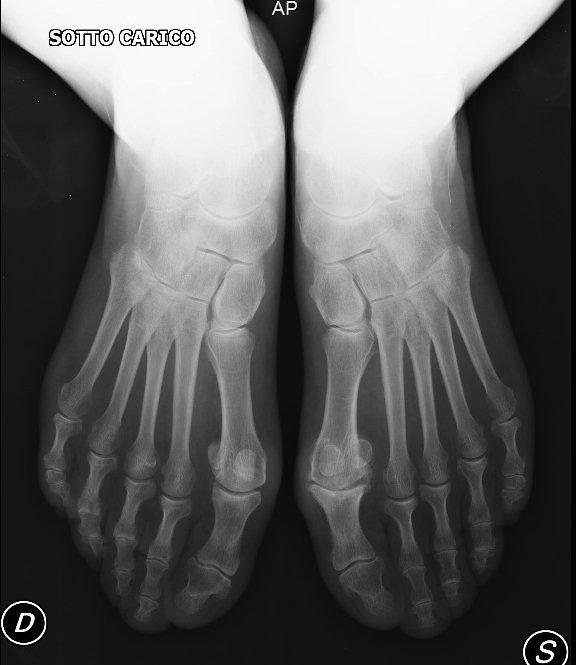radiografía, pie