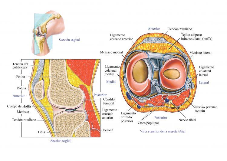 rotura del ligamento cruzado de la rodilla