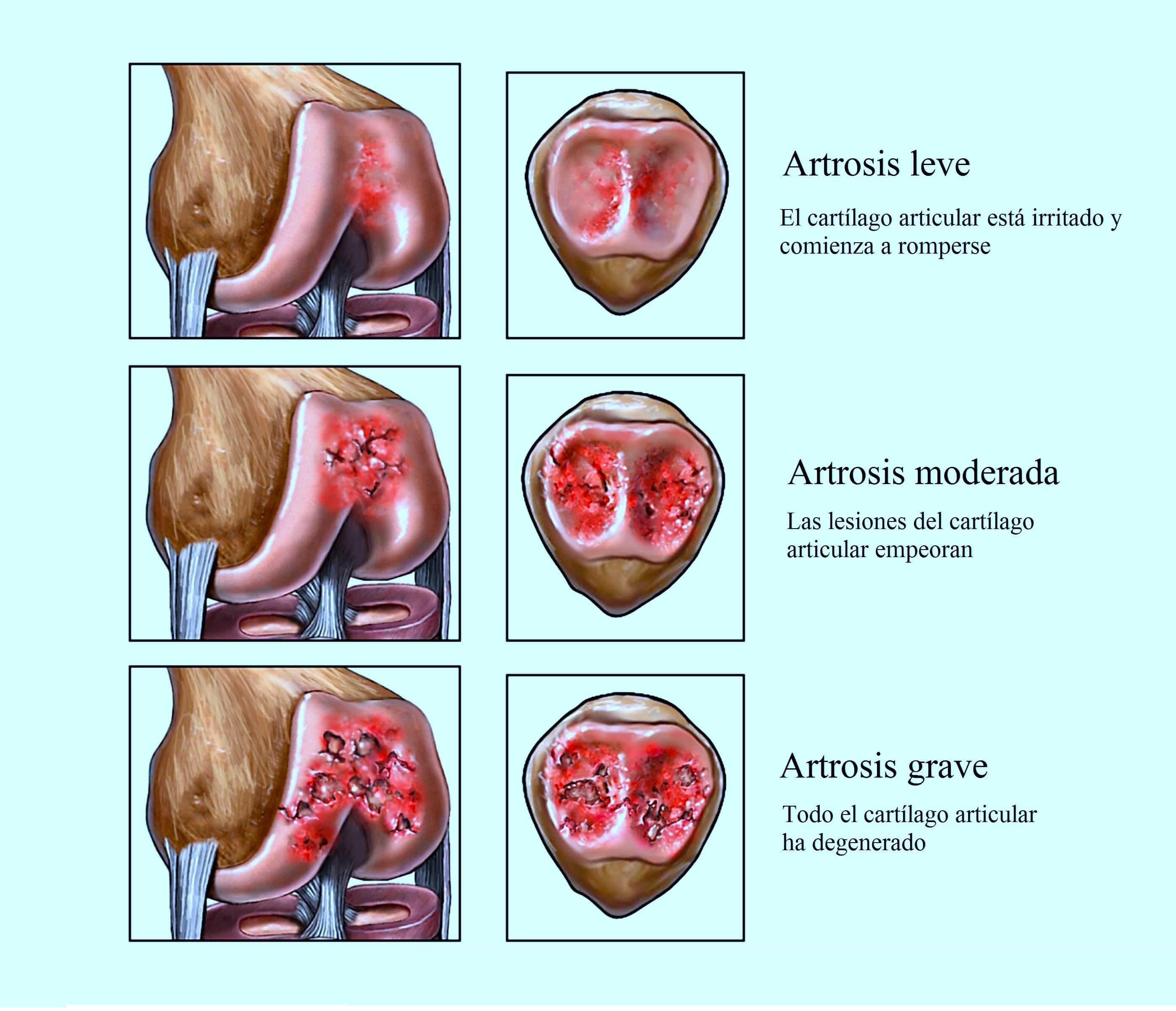 artrosis-de-rodilla-grave-leve