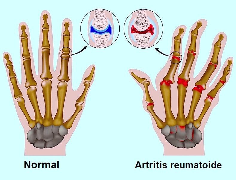 artritis, reumatoide, inflamación, deformación, enrojecimiento, calorías, rigidez, daño, dolor